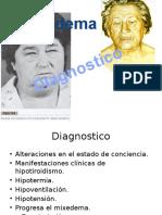 hipotiroidismo y mixedema.pptx