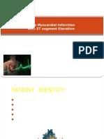 Inferior Myocardial Infarction