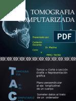 TOMOGRAFIA COMPUTARIZADA