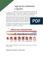 Fisiopatología de Los Síndromes Coronarios Agudos