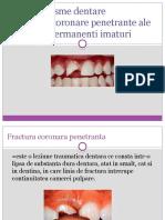 Fracturi coronare penetrante ale dintilor permanenti imaturi