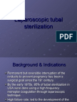 Laparoscopic tubal sterilization