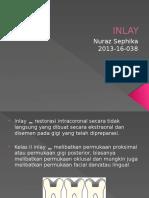 13. INLAY.pptx