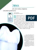 Cor e Forma en Dentes Posteriores Hirata