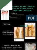 1deagosto Operatoria Dental, Caries en Dentina