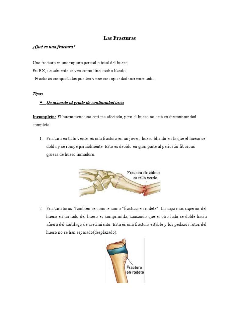 Único Hueso Se Rompe Composición - Imágenes de Anatomía Humana ...