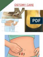 colostomycare-160427142831