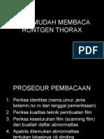 Cara Mudah Membaca Rontgen Thorax