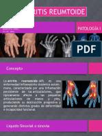 Patologia Medica- Artritis Reumatoide