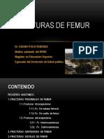 Fracturas de Femur. Ucsm 2014