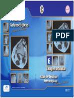 artroscopia_06