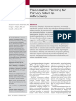 Preoperative Planning for Primary Total Hip Arthroplasty