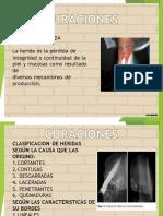 CURACIONES PRESENTACION.pdf