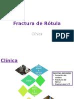 Fractura de Rótula