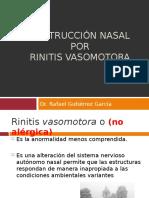obstruccionnasalporrinitisvasomotora.ppt