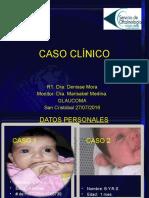 Glaucoma Congenito Casi Listo