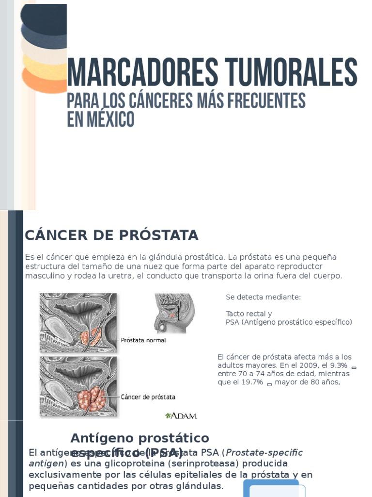 marcadores tumorales de próstata