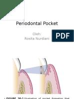 Periodontal Pocket.pptx