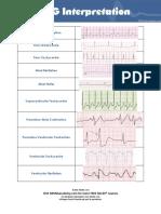 10 Common EKG Heart Rhythms