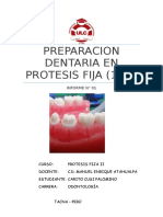 tallado molar inferior fija 2.docx