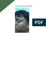 Tarea 2. Zonas Faciales Peligrosas