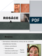 roscea-131201002804-phpapp02