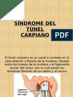 Problema Túnel Del Carpo (1)