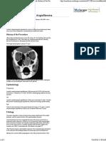 Angiofibroma nasofaring