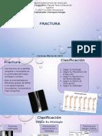 Presentacion Fractura