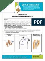 Prothese Totale de La Hanche