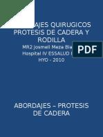 Abordajes Quirugicos de Cadera y Rodilla