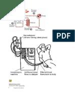 hemodialisis.doc