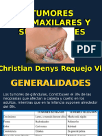Tumores Submaxilares y Sublinguales