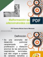 Malformación Quística Adenomatoides Congénita (1)