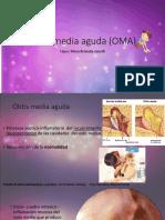 Otitis Media Aguda (OMA)