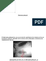 (5) Derarme Plaural - Fisiopatologia