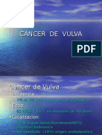 Cancer Vulva06