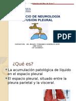 Efusión Pleural