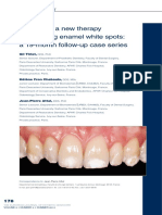 infiltration, a new therapy for masking enamel white spot.pdf