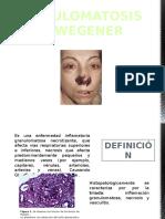 Granulomatosis de Wegener JL