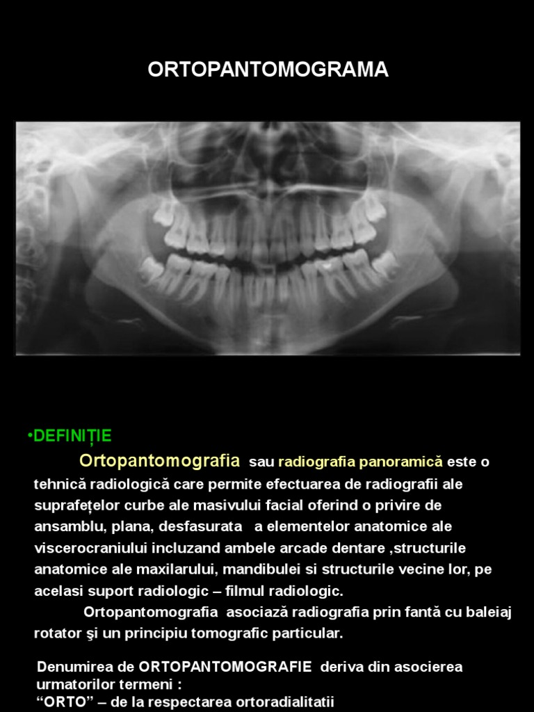 radiografie rx
