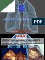 Absceso Pulmonar- Habilidades III Dr. Ordoñez