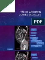 TAC de Abdomen Cortes Sagitales