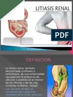 LITIASIS RENAL SIGNOS Y SINTOMAS DIAGNOSTICO TX PREVENCION
