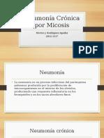 Neumonía Crónica Por Micosis