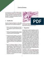 Astrocitoma.pdf