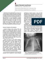 Radiology of Pneumonia