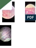 patologia imagenes en microscopio