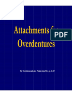 Attachments for Overdentures