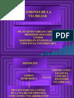 Complicaciones Quirurgicas de La via Biliar Principal